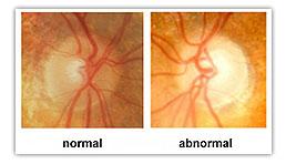 Glaucoma 20Eye 20Diagram