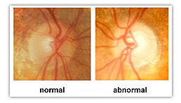 Glaucoma Illustration