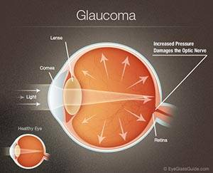 glaucoma diagram