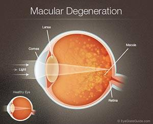 Optima Eye Care, Macular Degeneration