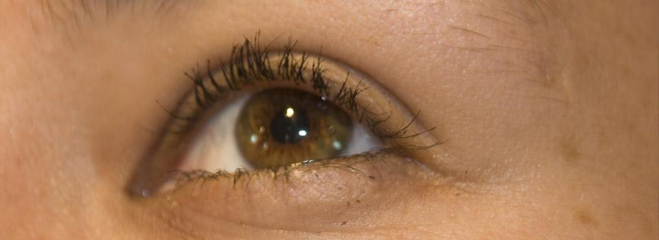 East Brunswick eye care