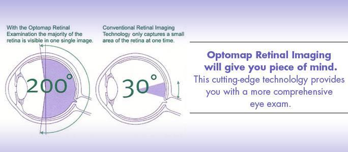 Optomap-Med-700x300